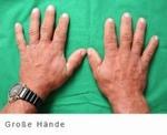 endokrinologie_hypophysenerkrankungen_akromegalie_02
