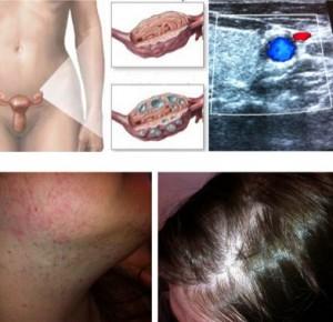 endokrinologie_pco-syndrom_01