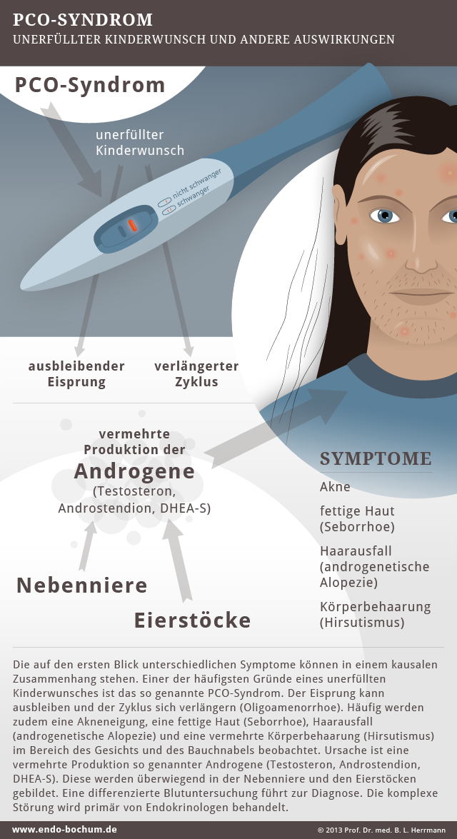 Info-Grafik PCO-Syndrom